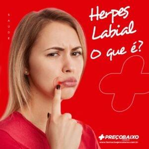 Herpes labial: o que é, tratamento e cura